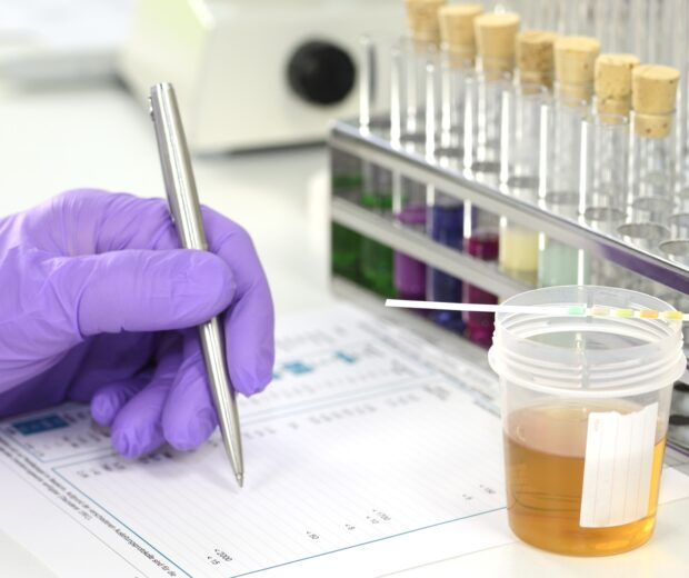Does your company conduct regular drug testing? If you're using a cannabis product, read on to learn the best way to pass a marijuana drug test.